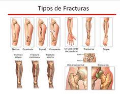 Tipos de fracturas óseas #fisioterapia #rehabilitación