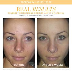 """Why settle for less on your special day, click the website link and answer a few questions under """"Find Your Formula"""" for a free no obligation skincare recommendation"""