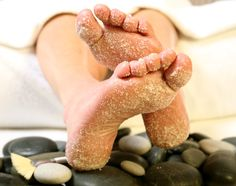 The secret to soft, supple and glowing feet is out. Take a look at 4 amazing home remedies to treat dull, cracked and tired summer feet: http://wp.me/p50eOV-ZC #FootCare #BeutyTips #Mothers #HomeRemedies