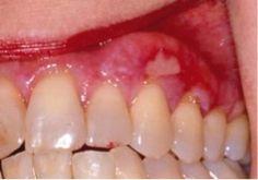 Severe Erosive Lichen Planus   In severe cases, severe ulceration can develop. Individuals affected ...