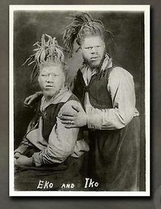 Willie and George Muse were black albino brothers born in Roanoke, VA in 1893. In 1899 they were kidnapped by sideshow agents and told there mother had died and they would never see her again. They were showcased as White Ecuadorian cannibals, Eko and Iko. In the mid 1920s the brothers toured with Ringling Brothers circus and while visiting their home town, their mother found them and fought to free her sons 20 years after their disappearance.