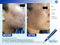 You won't believe the amazing results the #SkinPen achieved on #acnescars with only 3 #microneedling treatments!