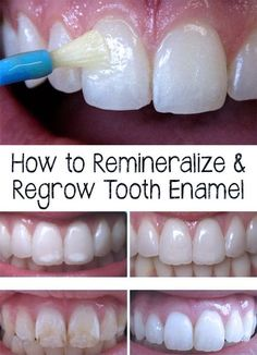 How to Remineralize & Regrow Tooth Enamel Amazing! Did you know that tooth enamel represents the toughest structure of the body? Find out how to remineralize and regrow tooth enamel. Teeth Health, Healthy Teeth, Oral Health, Dental Health, Dental Care, Health And Wellness, Health Tips, Dental Hygienist, Gum Health