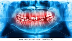 All x-ray images http://www.shutterstock.com/sets/132887-x-ray-teeth-jaw-human-skull.html?rid=498844 — Blue and red xray teeth scan mandible. Panoramic negative image facial of young adult male. Photo on digital system equipment for dental diagnostic examination upon clinical checkup — anatomy area body bone canal caries cerulean cobalt crimson crown cyan dentist dentistry head human jaw magenta mouth nerve oral panorama skull smiling tooth — #Royalty #free #stock #photo for $0.28 per downlo...