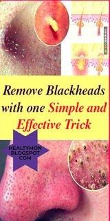 Remove Blackheads With One Simple And Effective Trick - Burn 500 Calories Health Tips For Women, Health Advice, Health And Wellness, Health Fitness, Women's Health, Health Benefits, Healthy Women, Healthy Tips, Healthy Drinks