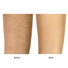 Find out what to do AFTER your laser hair removal treatment #hair #removal #bikiniline #laser #ipl #diode #facial hair   https://ihairremoval.com/blogs/news/take-care-after-your-laser-hair-removal-treatment