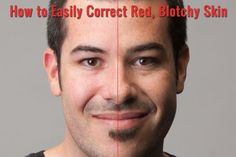 How to Quickly and Easily Correct Red Blotchy Skin in Photoshop | SLR Lounge