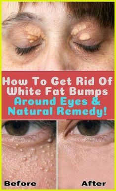 Beauty Tips For Skin, Health And Beauty Tips, Beauty Hacks, Health Tips, Beauty Skin, Health Facts, Health Articles, Diy Beauty, Health Benefits