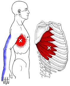 Pain+Left+Side+Under+Ribs | Respiration: Pain under my ribs while breathing? - Quora ~ Also, weakness in Serratus Anterior will show as scapular winging~ Strengthen Serratus: Push-ups