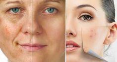 Aprenda de maneira simples, como utilizar a Água Oxigenada 10 vol. no tratamento de manchas simples ou de espinhas do rosto.
