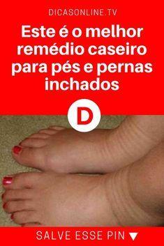 Remédios caseiros para tratamento de inchaço nas pernas