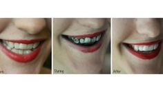 How To Whiten Your Teeth in Just 3 Minutes!