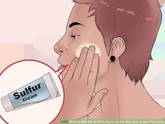 How to Get Rid of White Spots on the Skin Due to Sun Poisoning How To Tan, How To Get Rid, Dark Skin Tone, Even Skin Tone, Sun Spots On Skin, After Sun, Broad Spectrum Sunscreen, Flawless Skin, Dark Spots