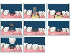 Dental implants are the next best thing to your healthy, natural teeth. Strong and stable, a dental implant restores a lost tooth so that it looks, feels, fits and functions like a natural tooth when implanted by an experienced implant dentist. Other options such as dentures or bridges can lead to bone deterioration, and may interfere with eating, smiling, speaking and other activities of everyday life. For more information visit our clinic website…