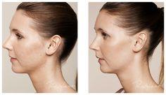 Akne arr kan behandles med Restylane