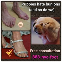 Save your puppy's eyes. Fix your bunions. Call us for a free consultation.  888-nyc-foot / nycfootcare.com  #NYC #ouch #celebrity #cosmetic #toes #makeup #manhattan #bronx #brooklyn #queens #fashion #fashionista #heels  #ugly #redcarpet #running #eww #yoga #ballerina #feet #fun #ballet #funny #dance #dancer #repost #success #style  #stylist #shoes