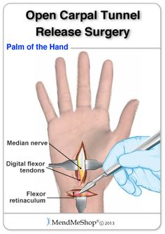 Carpal Tunnel Surgery:During open carpal tunnel release surgery the surgeon will make 2 incisions, 1 at the base of your hand and the other in the middle of your palm. #carpaltunnel