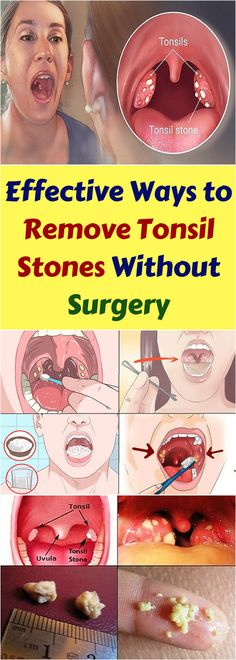 Often times, when we notice that we have little white nuggets in our tonsils, we feel as if something is stuck in our throat. These white nuggets are known as tonsil stones and a lot of people who have them, aren't aware that they have them.