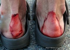 Man this looks painful!!!---6 PRO TIPS FOR AVOIDING BLISTERS when walking, hiking, backpacking, etc.
