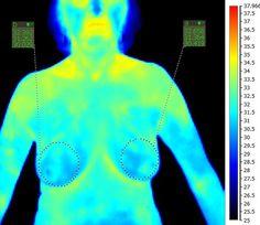 Ako spoľahlivo odhaliť rakovinu prsníka bez škodlivého röntgenu?