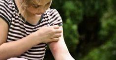 Σας τσίμπησε κουνούπι; Δείτε τι μπορείτε να κάνετε για να φύγει η φαγούρα!