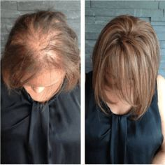 Employ These Thining Hair Treatment For Ideal Hair Care! - Hair Care Tips Extensions For Thin Hair, Hair Extensions Tutorial, Fusion Hair Extensions, Halo Hair Extensions, Thin Hair Styles For Women, Shot Hair Styles, Thin Hair Haircuts, Hair Toppers, Monat Hair