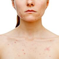 First we will tell you about chest acne causes and then will explain to you how to clear and get rid of chest acne at home fast with natural remedies Cystic Acne On Chin, Acne And Pimples, Acne Scars, Cystic Acne Remedies, Cystic Acne Treatment, Cystic Acne Essential Oil, Essential Oils, Acne Causes, Hormonal Acne