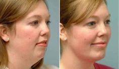 Des exercices incroyables afin de resserrer votre peau et vous débarrasser de…