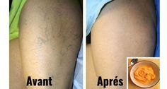 Les veines variqueuses sont des micro-blessures qu'il faut traiter avec un très grand soin. Elles peuvent affecter les hommes et les femmes de tous les âges. C'est un dysfonctionnement provoqué par la dilatation ou le gonflement des veines qui les rendent plus évidentes que les veines saines. …