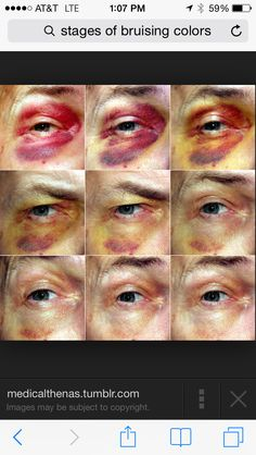 Stages of bruises Eye