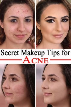 Secret Makeup Tips for Acne Acne, scars, and pimples are skin problems that give many women headaches.Try this makeup tips for acne if you want to cover your face imperfections. How To Cover Pimples, Ice Pick Acne Scars, Redness On Face, Acne Blemishes, Covering Acne With Makeup, Acne Makeup, Makeup To Cover Acne, Best Makeup For Acne, Hairstyles