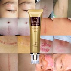 Acne Spot Treatment --- Wisdompark Acne Scar Removal Cream Skin Repair Face Cream Acne Spots Acne Treatment Blackhead Whitening Cream Stretch Marks * You could obtain extra details at the image web link. (This is an affiliate link). Acne Mark Removal, Scar Removal Cream, Acne Scar Cream, Pimple Scars, Scar Remedies, Natural Remedies, Remove Acne, Remove Stains, Scar Treatment