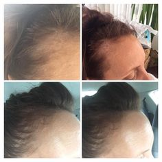 Anyone suffer from thinning hair? This was after approx 3 weeks. Nutriol Shampoo, Nu Skin, Thinning Hair, 3 Weeks, Amazing, Quotes, Instagram, Quotations