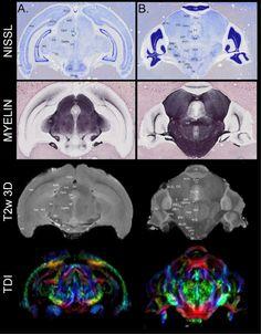 chiropteran brain anatomy - Recherche Google Brain Anatomy, Darth Vader, Google, Fictional Characters