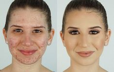 Acne with Makeup, Before & After, Change Makeup.. #OrganicFaceMoisturizer Organic Face Moisturizer, Tinted Moisturizer, Before And After Acne, Covering Acne, Spotty Face, Overnight Acne Remedies, Acne Makeup, Pimples Remedies, Hair Frizz
