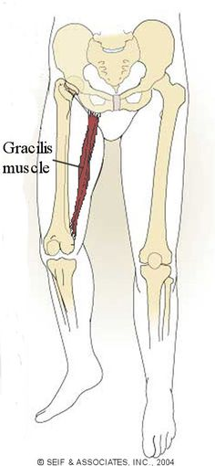 Gracilis Syndrome With Rehab-SportsMed Massage Tips, Massage Techniques, Psoas Muscle, Muscle Pain, Message Therapy, Psoas Release, Scoliosis Exercises, Self Treatment, Muscle Anatomy