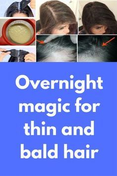 Overnight magic for thin and bald hair IF you are suffering from thin and bald hair, this post is only for you. Today I will share one magical recipe that can change your hair growth in just 1 night You will need 1 tbsp castor oil 1 egg yolk, yellow part 1 tbsp honey What to do Mix all above ingredients in …