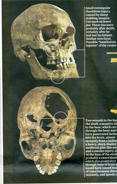King Richard III - skull with all the damages done to it in battle.  I suspect he was dead from that first 1 or 2 blows and they just whacked him to pieces afterwards, just to make sure...!