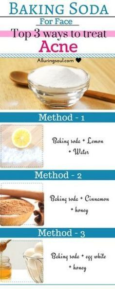 Homemade Acne Treatment - Homemade Acne Remedies - Discover the Top 6 Acne Treatments You Can Make at Home -- Continue with the details at the image link. #whatsunderyourmakeup