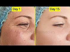 Japanese Antiaging Secret To Look 10 Years Younger , Antiaging remedy, Remove Wrinkes & Acne