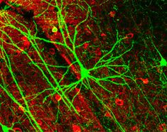 neurons - Google Search