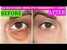 How to Get Rid of Unwanted Facial Hair (Quick and Easy) - Under Eye Wrinkles Dark Circles Under Eyes, Dark Under Eye, Dark Circle Remedies, Nose Pores, Under Eye Wrinkles, Hair Remedies For Growth, Hair Growth, Double Chin, Puffy Eyes