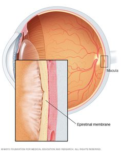 9 Best Epiretinal Membrane Images On Pinterest In 2018