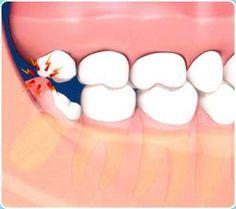 Swollen gum behind wisdom tooth #Artofmoderndentistry