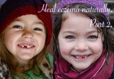 Heal eczema naturally, part 2. | Clean. : : the LuSa Organics Blog
