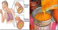 ADIÓS A LA TOS, FLEMA, GRIPE, LIMPIA LOS PULMONES PARA SIEMPRE CON ESTE ANTIGUO REMEDIO Somos bastante conscientes del hecho de que las zanahorias son excepcionalmente saludables, altas en betacarotenos y vitamina A, los cuales son vitales para la salud de la vista. Las zanahorias también son una rica fuente de vitamina C, y B, además ...