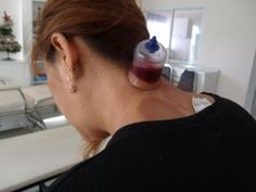 """My Neck - Treating Cervical Spondylosis with """"Extreme"""" Cupping Therapy Hijama Cupping, Cupping Therapy, Ozone Therapy, Cervical Spondylosis, Heath Tips, Alternative Therapies, Dry Brushing, Health Fitness, Healing"""