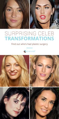 Many of our most beloved celebrities have had a little work done. If you're considering a procedure, try Zwivel. Get virtual consultations from multiple cosmetic surgeons. Compare prices and find a good fit without running around town to appointments. Botox Before And After, Celebrities Before And After, Eyeliner For Hooded Eyes, Hooded Eye Makeup, Beauty Art, Hair Beauty, Makeup Tips, Hair Makeup, Celebrity Plastic Surgery