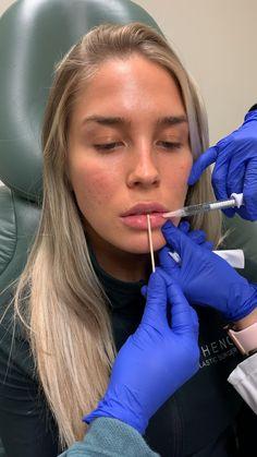 Facial Fillers, Botox Fillers, Dermal Fillers, Lip Fillers, Lip Injections Juvederm, Botox Lips, Natural Lips, Natural Lip Plumper, Lip Types