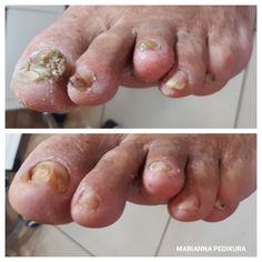 Toenails, Fungi, Pedicure, Pedicures, Mushrooms, Toe Nails, Toe Polish, Feet Nails